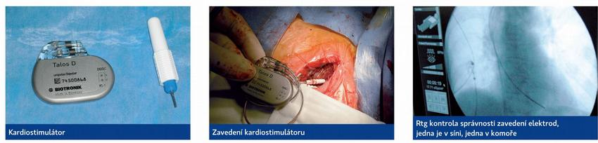 Kardiostimulace - sick sinus syndrome