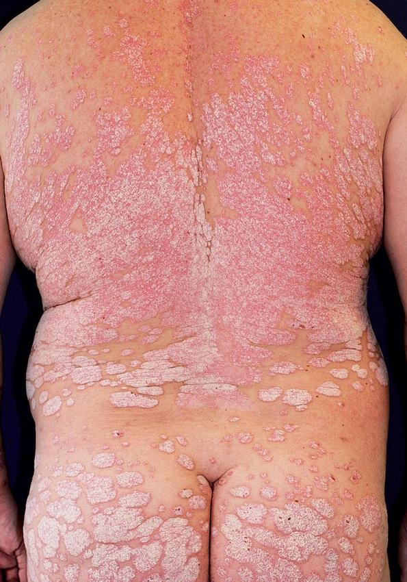 Obr. 3 – Psoriasis geographica